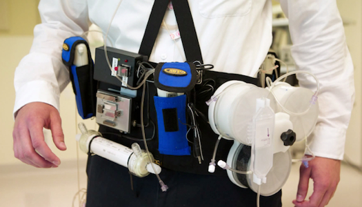 wearabledialysis