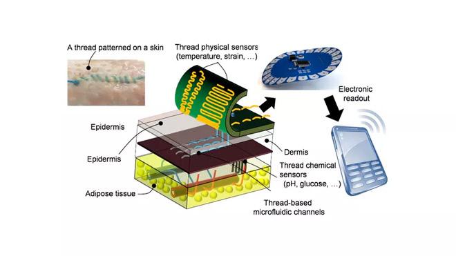 smart suture