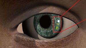 akıllı lens diyabet