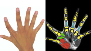 altı-parmak