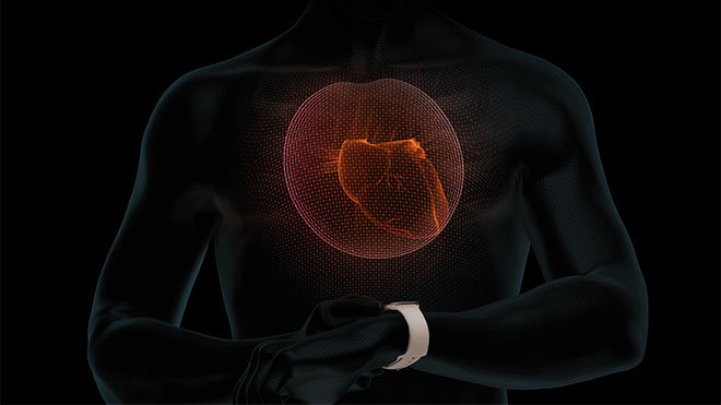 Apple Watch EKG